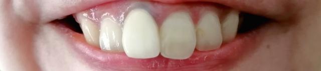 差し歯やブリッジがあっても矯正治療はできる?できない?